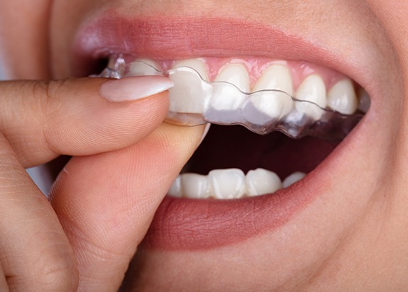 Closeup of patient placing Invisalign clear aligners
