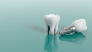 A natural tooth and an implant side-by-side