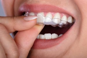 person removing Invisalign in Fresno