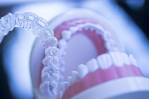 Invisalign aligners and a model mouth
