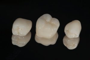 three same-day dental crowns in Fresno against black background