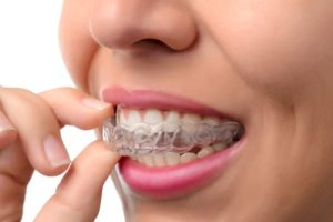 Woman wearing clear dental aligners