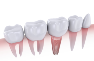 digital image of dental implants