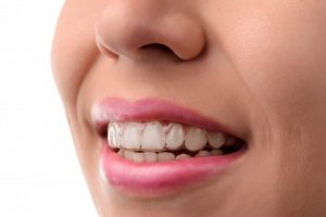 woman smiling with Invisalign aligner inserted